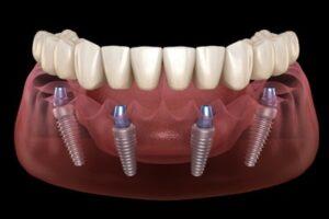 Best Dental Implant Malaysia.jpg